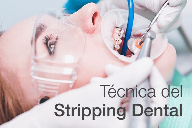 Técnica del Stripping Dental