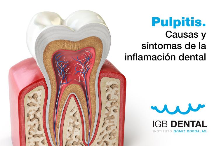 Pulpitis. Causas y síntomas de la inflamación dental