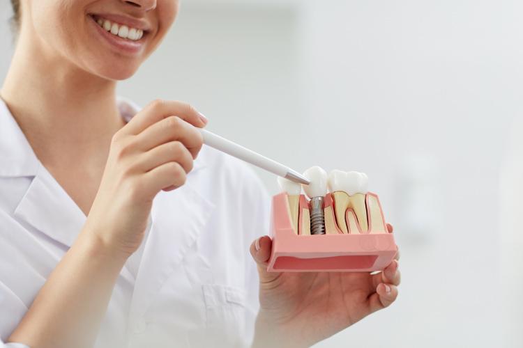 ¿Por qué el implante dental es sinónimo de felicidad?