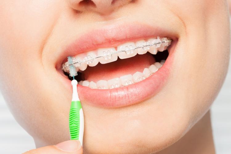 8 Consejos para cuidar los brackets de ortodoncia