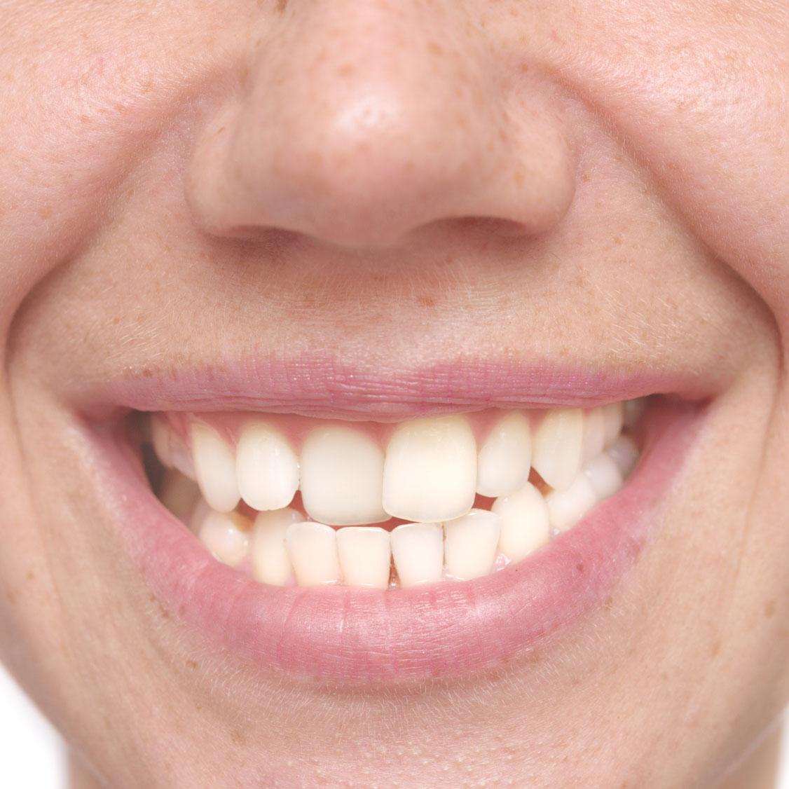 J'ai les dents tordues