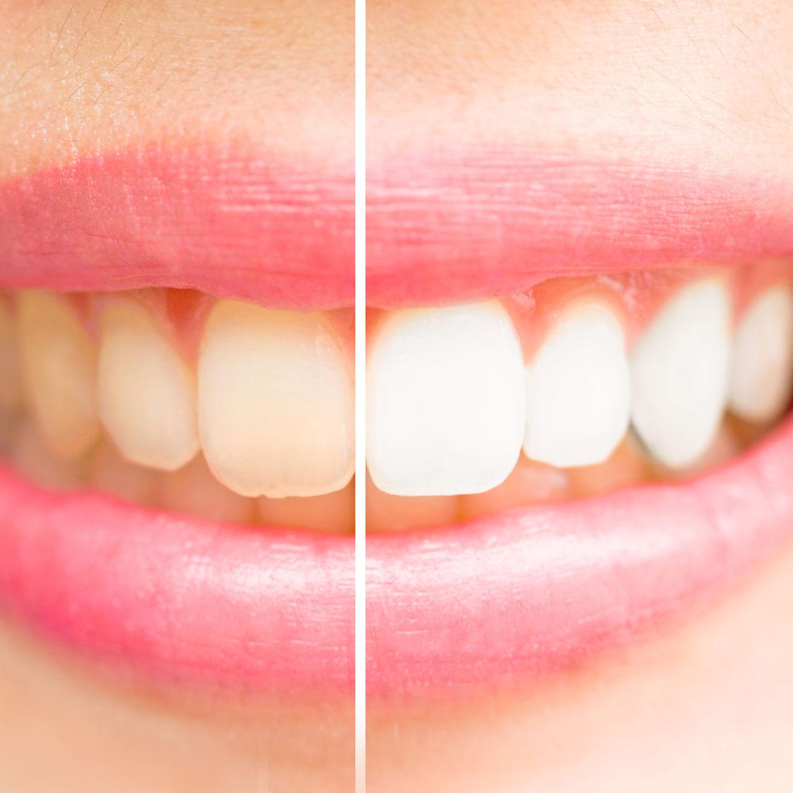 J'ai les dents jaunes
