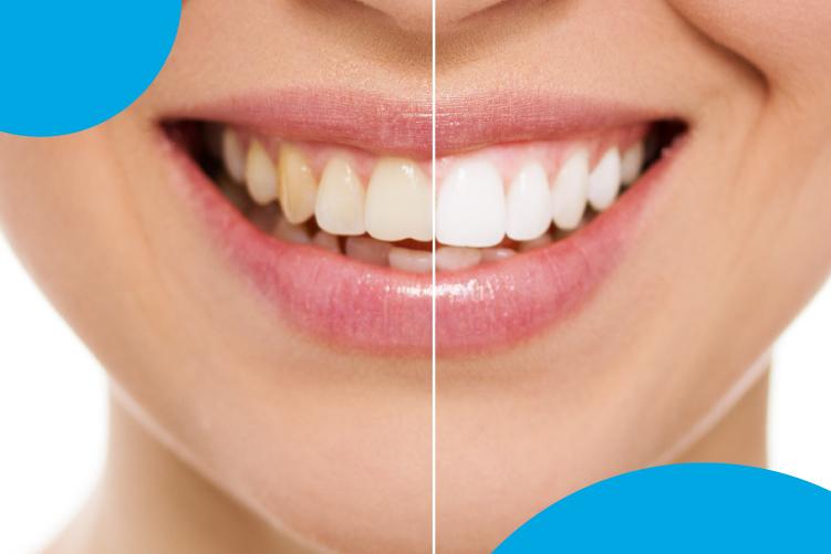 ¿Por qué varia el color de los dientes?